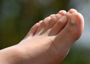 Fotproblem i samband med löpning
